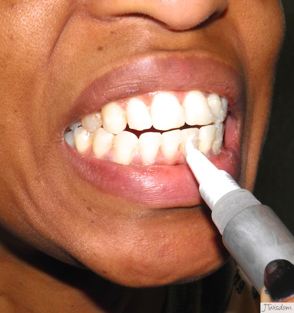 Smile Brilliant Teeth Whiting Gel Application System